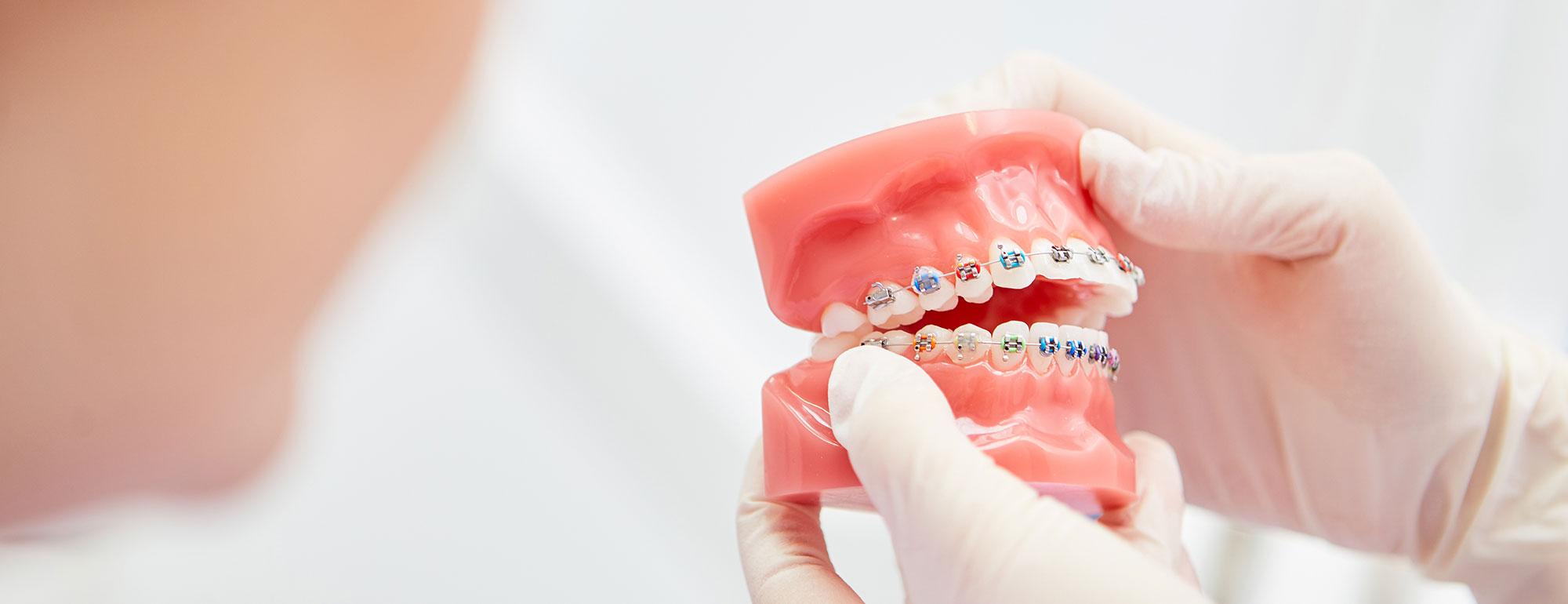 Arten von Zahnspangen vor und nach dem Abnehmen